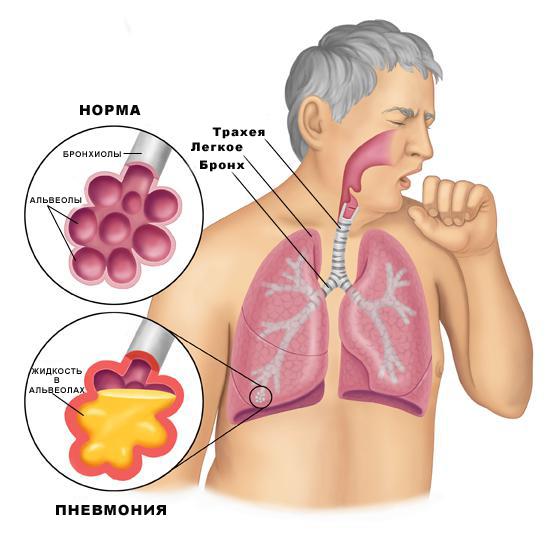 Лечение органов дыхания в санаториях белокурихи