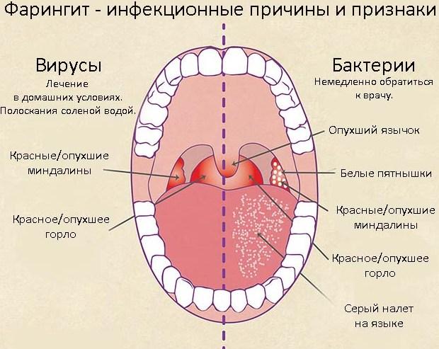 фото заболевание горла фарингит